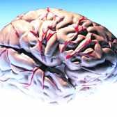 Що таке інсульт мозку
