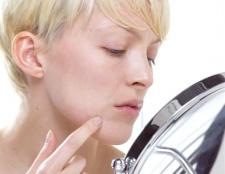 Як позбутися від фурункула на обличчі
