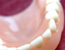 Як вибілювати зубні протези