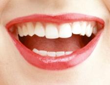 Як прибрати жовтий наліт на зубах