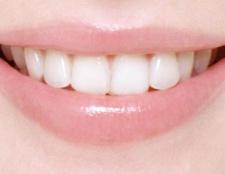 Чому болить зуб