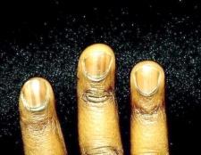 Чому чорніють нігті