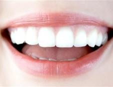 Як вирівняти передні зуби
