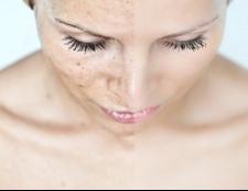 Як лікувати лишай на обличчі